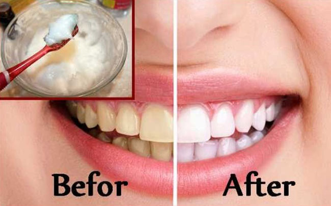 The secret to a dazzling smile the natural way?